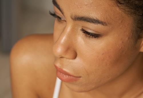 soin du visage anti-acné